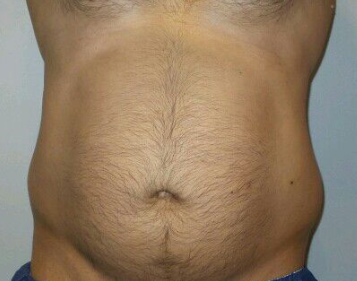 CoolSculpting of the Flanks Before