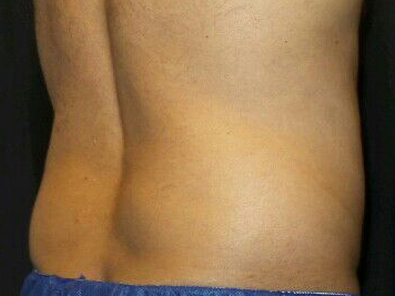 CoolSculpting of the Flanks After