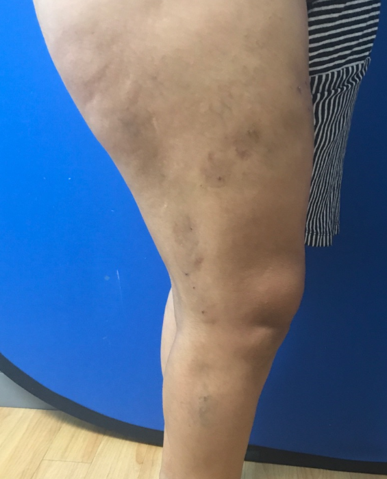 Varicose Vein Treatment After