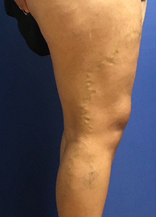 Varicose Vein Treatment Before