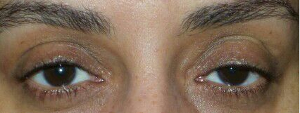 Eye lash perm and tint Before