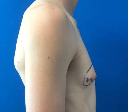 Right Male Breast Fat Removal Before