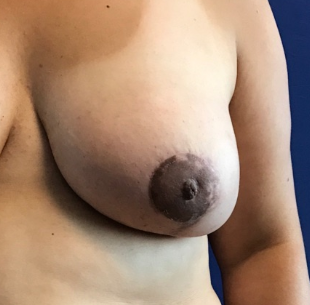 Nipple Reduction Before