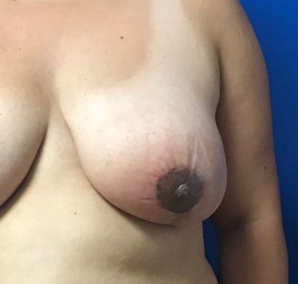 Nipple Reduction After