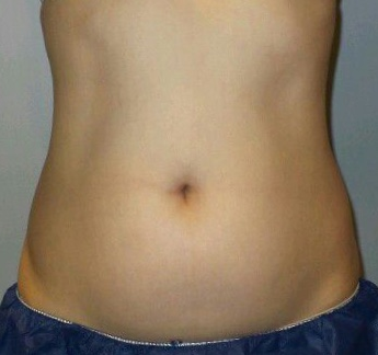 CoolSculpting of Midsection Before