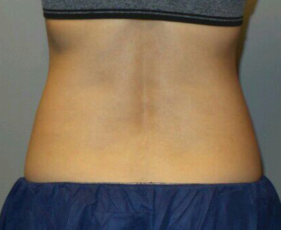 CoolSculpting of Midsection After