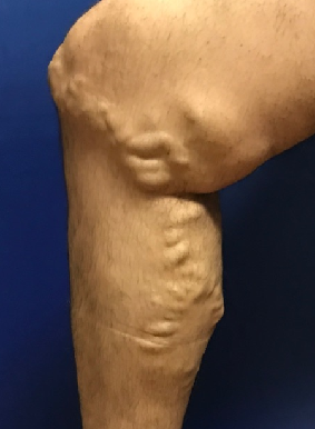 Huge Bulging Veins Vanish Before