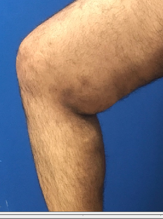 Huge Bulging Veins Vanish After