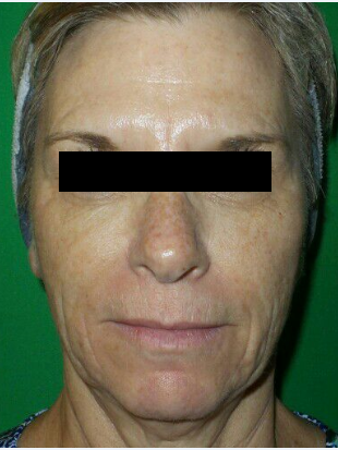 After 1 Chemical Peel Before
