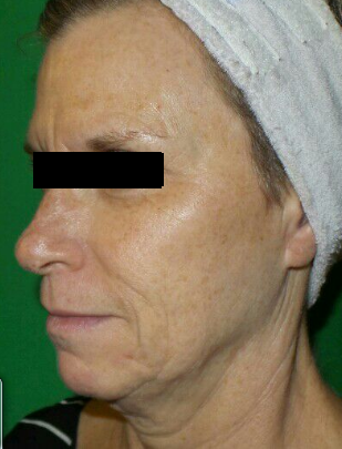 After 1 Chemical Peel After