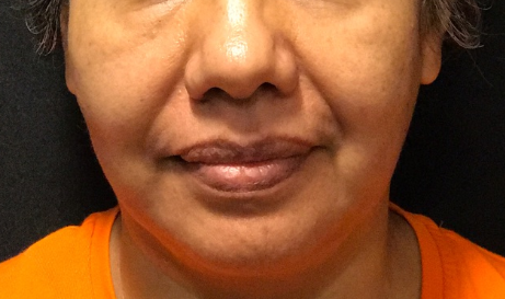 Nasolabial Fold Filler Before