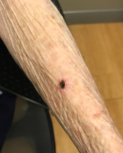 Skin Cancer- SCC Before