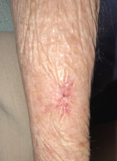 Skin Cancer- SCC After