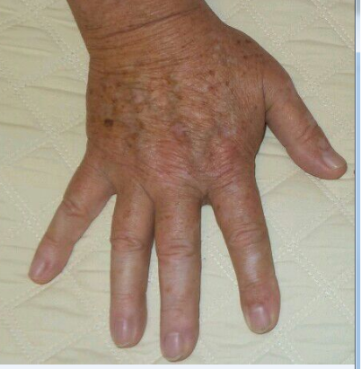Amazing Results IPL hands Before