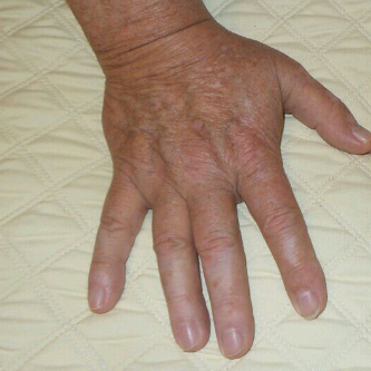 Amazing Results IPL hands After
