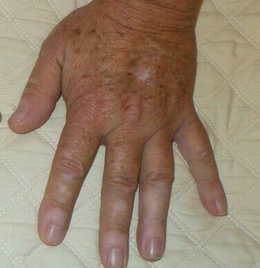 Amazing Reaults IPL Hands Before