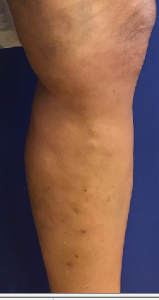 3 week post op phlebectomy After