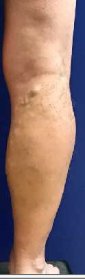 6 mos followup vein procedures Before