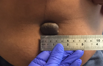 Navel Keloid Removal Before