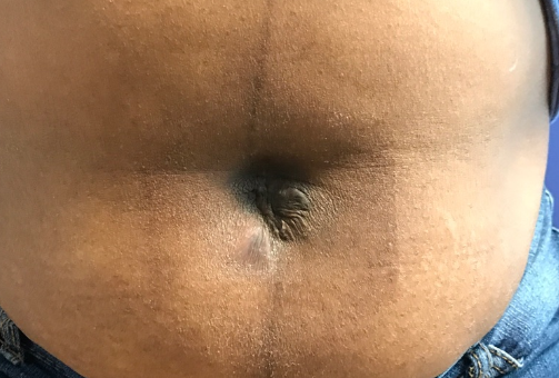 Navel Keloid Removal After