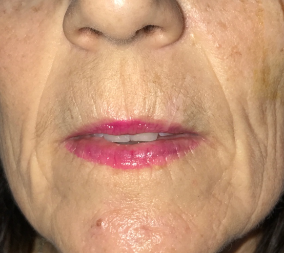Mohs Closure Upper Left Lip After