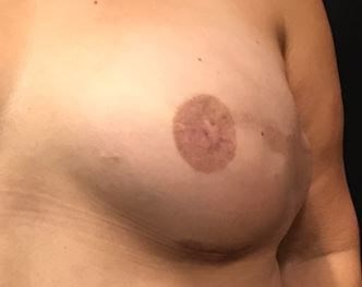 Nipple Tattooing After