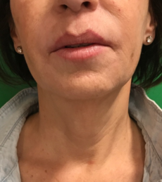 Botox and Restylane Refyne After