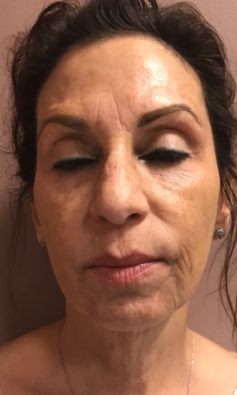 Botox and Restylane Refyne Before