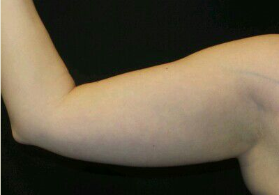 CoolSculpting of the Upper Arm Before