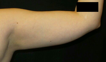 CoolSculpting of the Upper Arm After