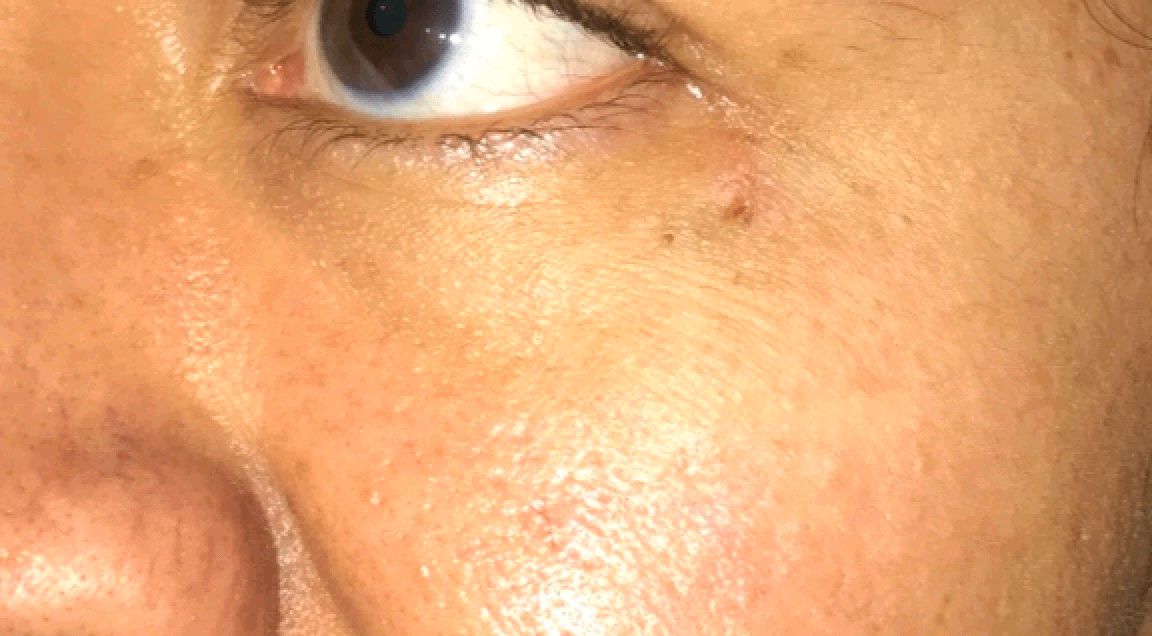 Basal Cell Carcinoma After