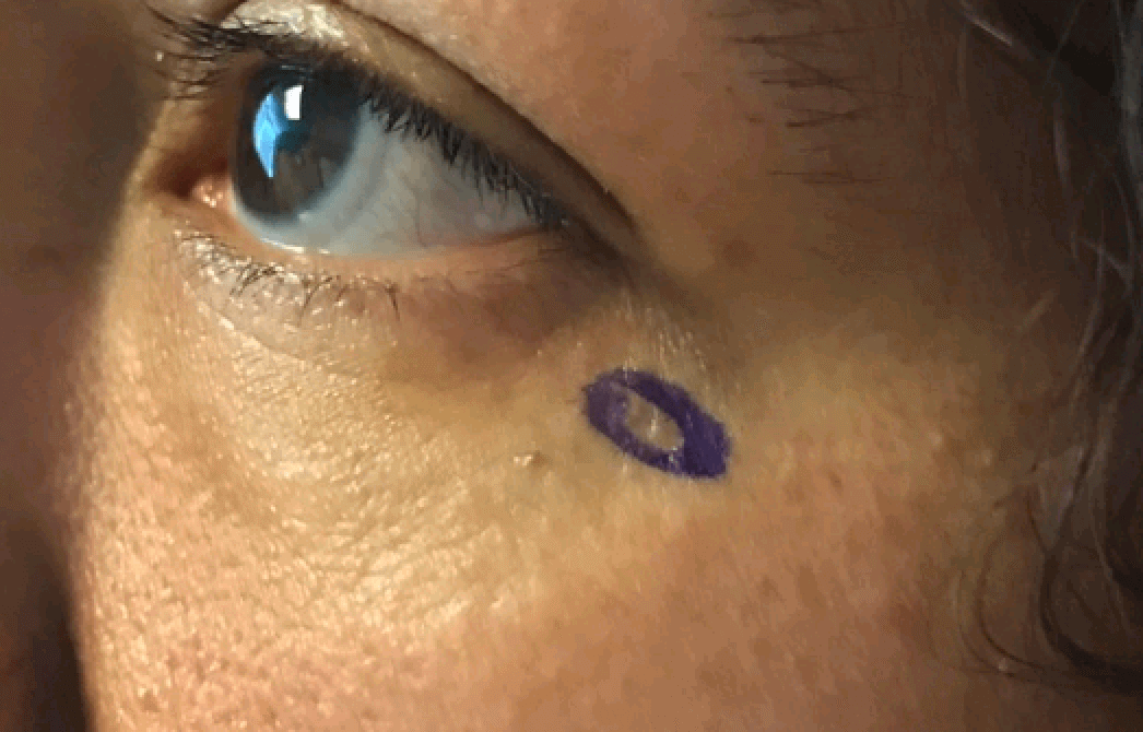 Basal Cell Carcinoma Before