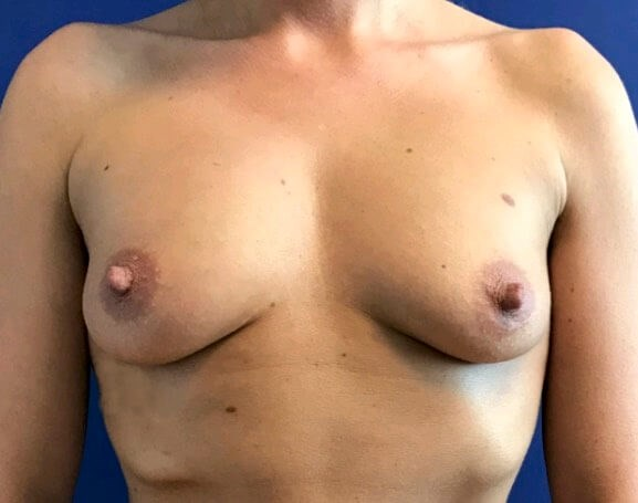 Breast Reconstructon Before