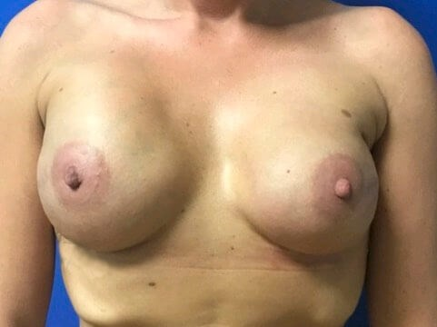 Breast Reconstructon After