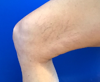 2nd treatment spider veins Before