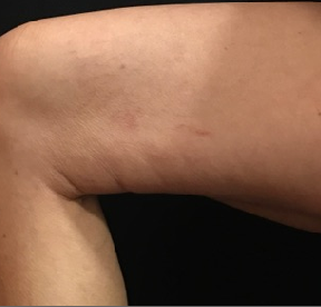 2nd treatment spider veins After