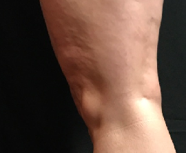 Spider Vein Treatment After
