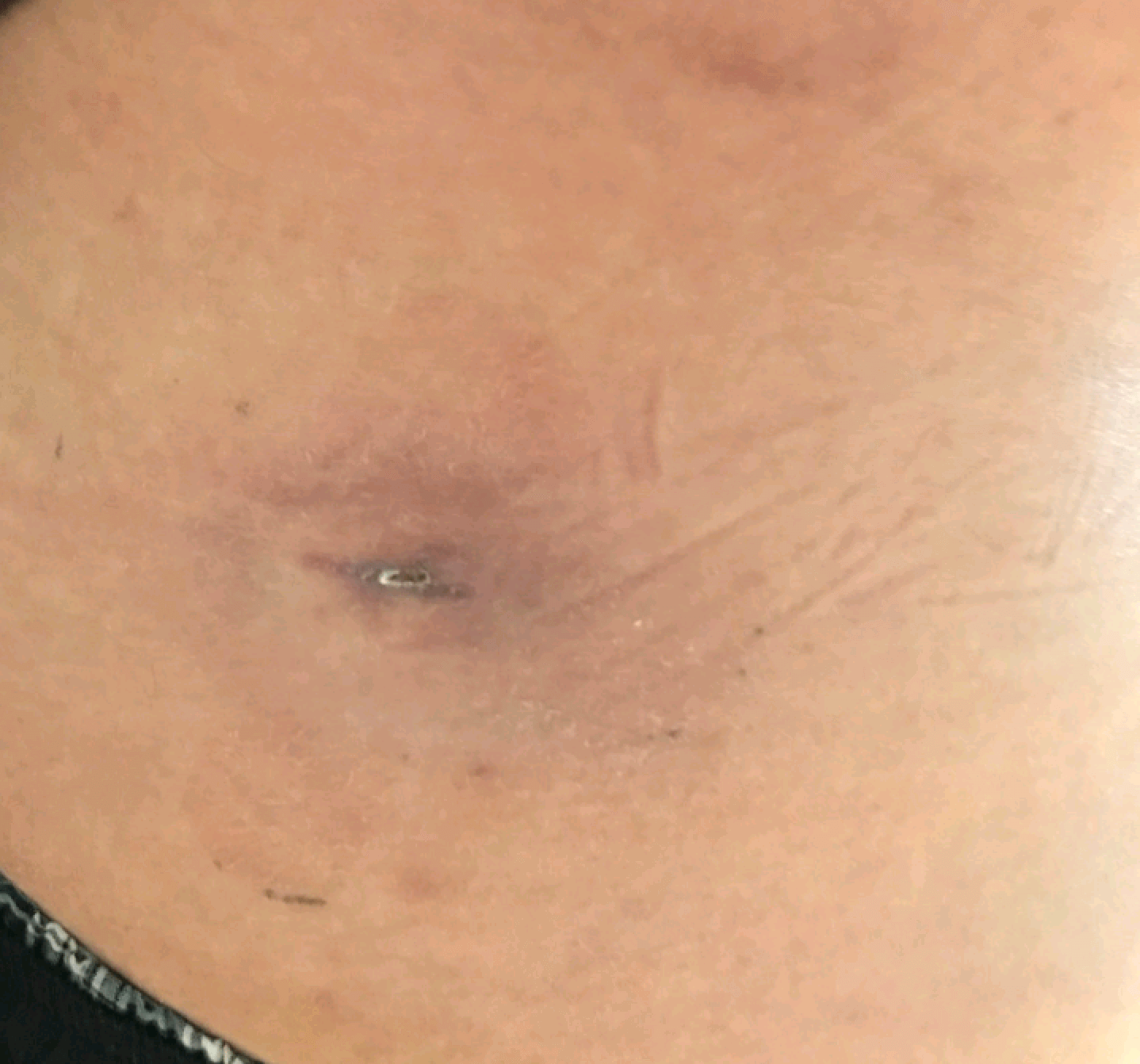 Infected Sebaceous Cyst After