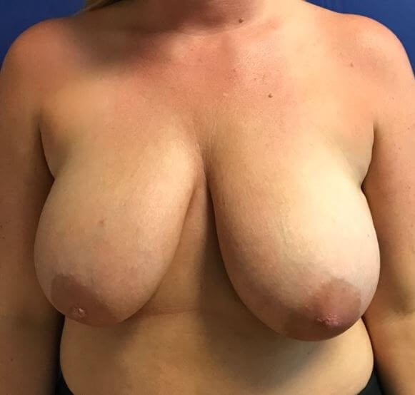 Beautiful breast reduction Before