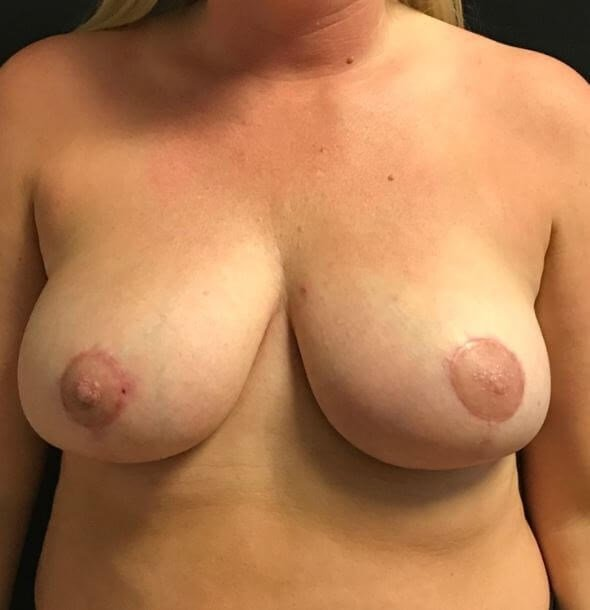 Beautiful breast reduction After