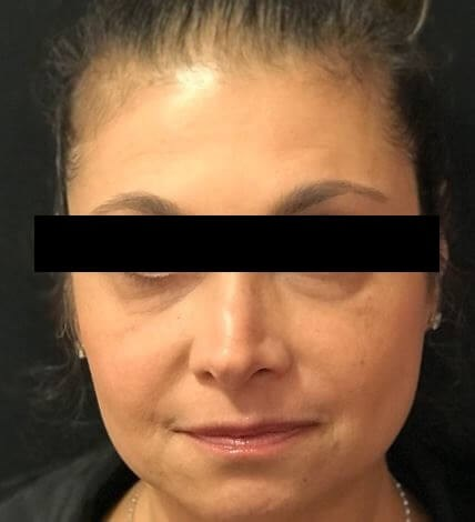 Facial Injectables After