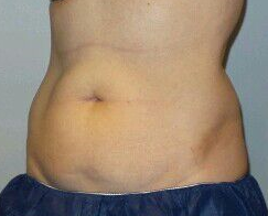 CoolSculpting Abdomen + Flanks Before