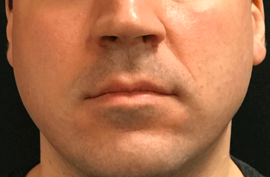 Nasal Labial Folds Filler Before