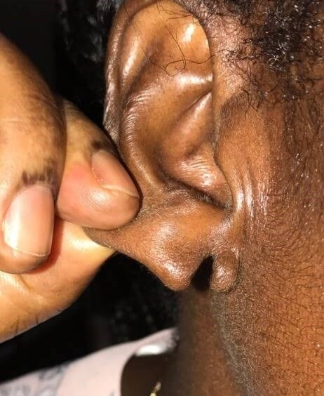 Earlobe Repair Before