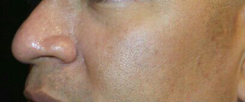 After Two Veingogh Treatments After