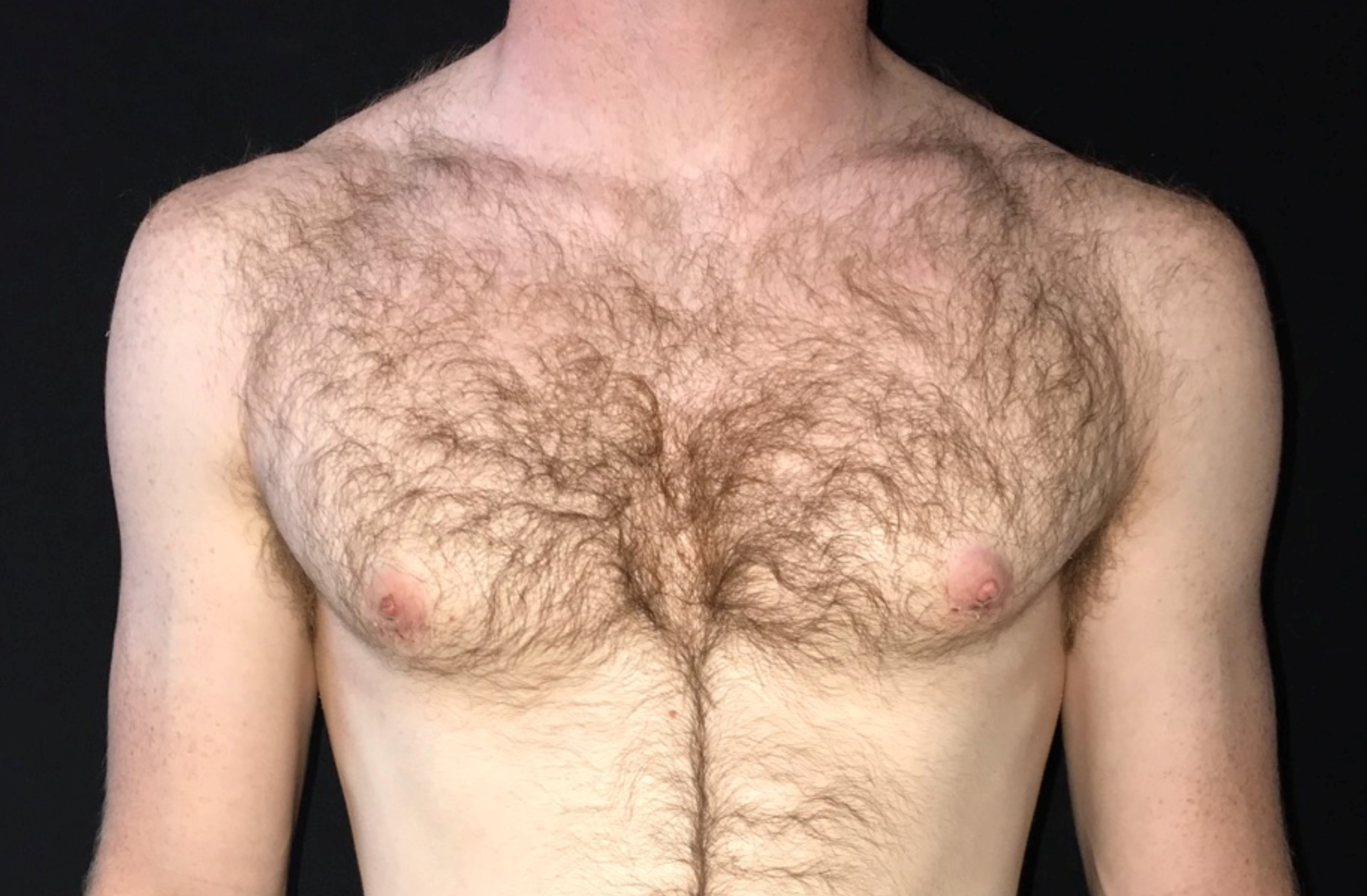 Great Gynecomastia Results! After
