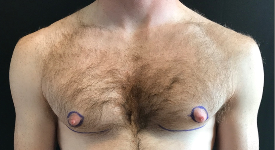 Great Gynecomastia Results! Before