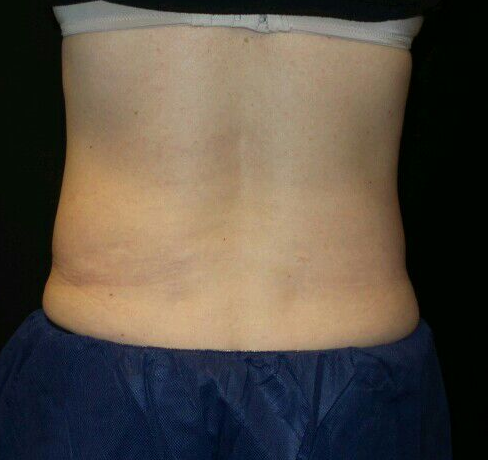 CoolSculpting Posterior Flanks Before