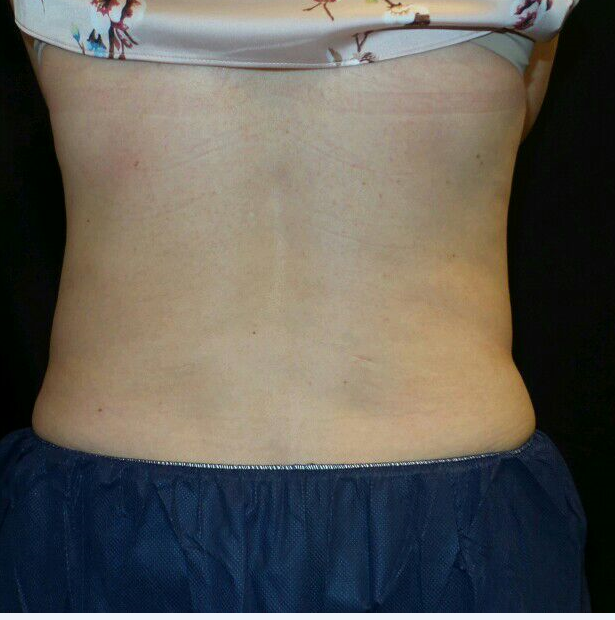 CoolSculpting Posterior Flanks After