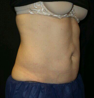 CoolSculpting Lower Flanks  Tx Before